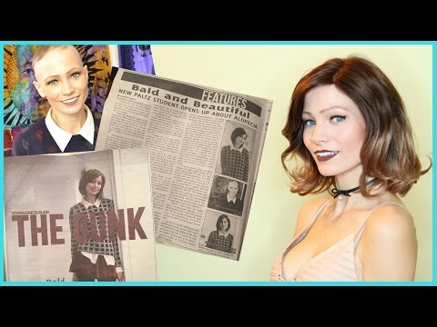 Featured in a Newspaper for Having Alopecia   Storytime
