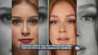 Médica explica postagem sobre aparência da atriz Marina Ruy Barbosa