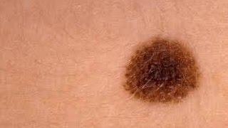 هل تعلم ماذا يعني وجود الشامات على جسمك... معلومة مدهشة !