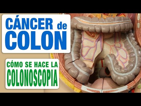 La colonoscopia óptica La mejor Técnica para Diagnosticar un Cáncer de Colon