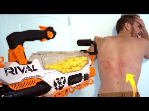 MOST PAINFUL NERF SHOT New Rival