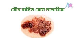 Sexually transmitted disease gonorrhea (যৌন বাহিত রোগ গনোরিয়া)
