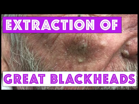 Blackheads or Sebaceous Filaments on the Nose Extractions