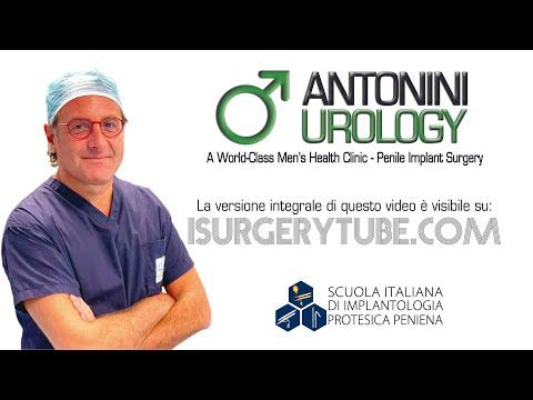 Fimosis Circuncision Frenillo Fimosi Circoncisione Frenulotomia e Frenuloplstica Andrologo Madrid Ro