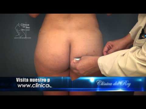 BUTTOCKS AUGMENTATION BUTT IMPLANTS PLASTIC AND COSMETIC SURGERY