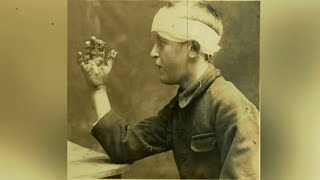Unsettling WW1 Horrific Injury And Wound Photos You're Not Allowed To See