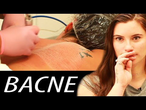 Xxx Mp4 We Scraped The Acne Off Our Backs 3gp Sex