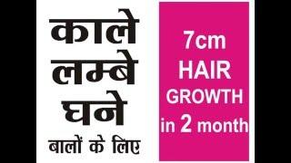 Stop HAIR LOSS   Baldness Hair Mask Home remedy 7cm in 2month HAIR GROWTH  काले लम्बे घने बालों के ल