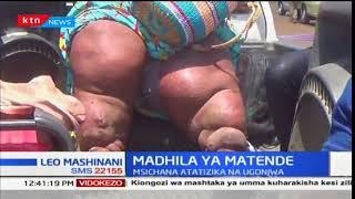 Msichana anayeugua ugonjwa wa matende (elephantiasis) atafuta usaidizi
