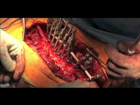 Scoliosis Surgery Posterior Spinal Instrumented Fusion Surgeon Shyam Kishan MD