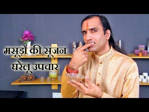 Home Remedies For Gingivitis in Hindi - मसूड़ों में सूजन के घरेलू उपचार - Sachin Goyal