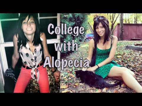 Going to College with Alopecia