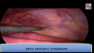 Операция паховой грыжи