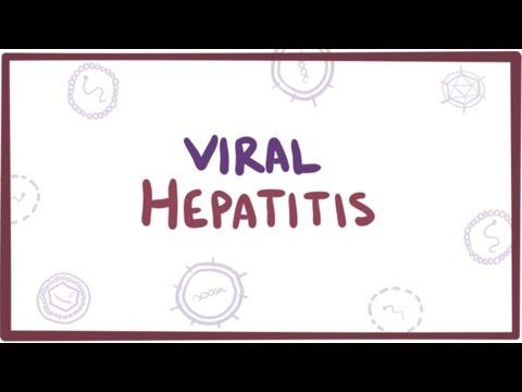Xxx Mp4 Viral Hepatitis A B C D E Causes Symptoms Diagnosis Treatment Pathology 3gp Sex