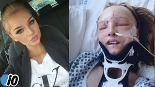 Teen Has Her Face Removed And Rebuilt After Car Accident