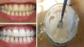 How To Whiten Teeth at Home in 3 Minutes - SIMPLE