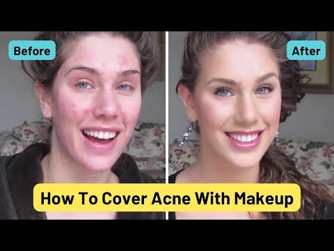 Acne Foundation Routine Pimples Scars Cystic Acne Blackheads & Oil Cassandra Bankson