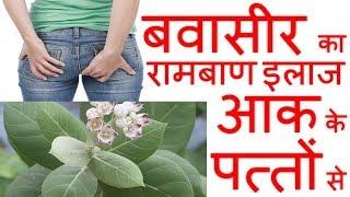 बवासीर का रामबाण इलाज आक के पत्तों से