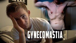 GYNECOMASTIA: MY STRUGGLE