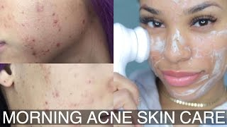 Morning Acne Skin Care Routine