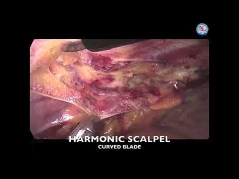 Xxx Mp4 Endoscopic Harvesting Of The Left Internal Mammary Artery 3gp Sex