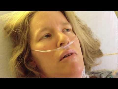 Xxx Mp4 Open Heart Surgery Video Dairy Hypertrophic Cardiomyopathy 3gp Sex