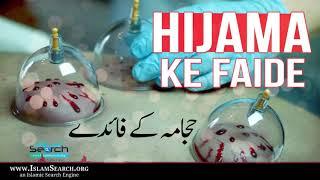 Hijama (Cupping) ki Faide || Benefits of Cupping || Tib e Nabvi || IslamSearch