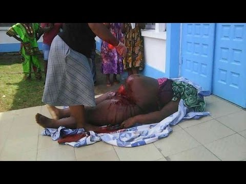 Xxx Mp4 Cameroon Pregnant Woman Dies As Doctors Refused To Attend To Her Because She Had No Money Koumate 3gp Sex
