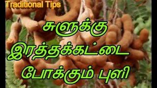 சுளுக்கு  இரத்தக்கட்டை  போக்கும் புளி || Benefits of Tamarind in Tamil