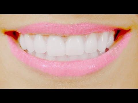 DIY: Get straight teeth FREE, FAST  at home! 自家製ブレース