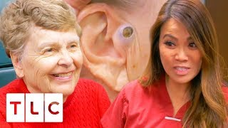Dr. Lee Removes A Massive 55 Year Old Blackhead! | Dr. Pimple Popper