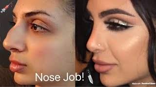 MY NOSE JOB! Plastic Surgery Tell All; SadiaSlayy