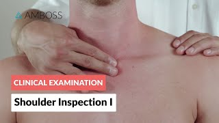 Shoulder inspection – Clinical examination | Δ AMBOSS