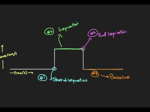 Principles of Mechanical Ventilation 2: Phases of a breath