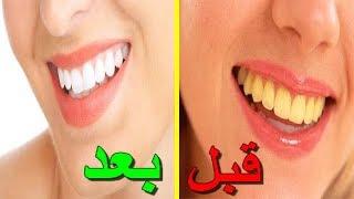 5 طرق منزلية للحصول على أسنان بيضاء ناصعة ⭐⭐