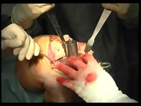 операция по замене коленного сустава в саратове цена