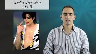 المرض اللي لازم كل الناس تفهمه (البهاق) - د. محمد الناظر