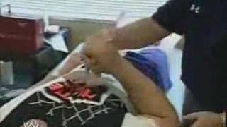 Cena's Surgery
