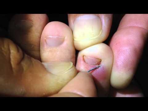 Método para retirar bicho de pé sem danificar a capsula da Pulga Detalhes Zoom 64x Iphone 5s 1 PARTE