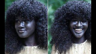 """الخمسة أشخاص """" ذوي ألوان البشرة """" الفريدة من نوعها ..!"""