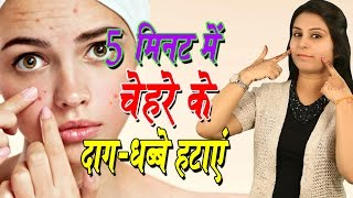 5 मिनट में चेहरे के दाग धब्बे हटाए Pimples Marks Removal On Face At Home | Acne Treatment (Beauty)