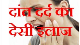 दांत दर्द का देसी इलाज |  Teeth Pain Home Remedy Treatment Tips Hindi  Dant Ka Dard