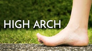 High Arch Feet (Cavus Foot) - Georgina Tay, Singapore Podiatrist