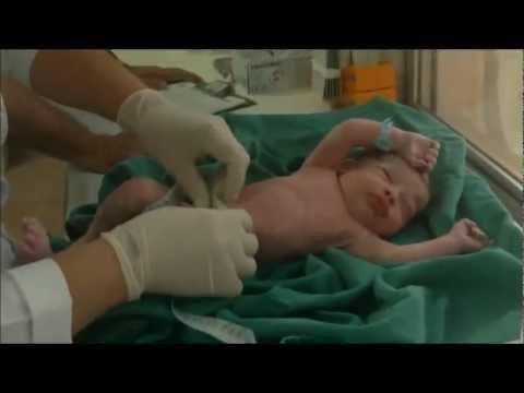 Nascimento do nosso Bebê lindo parto cesária