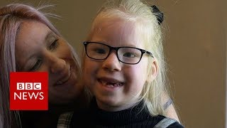 The little girl who is always hungry - BBC News