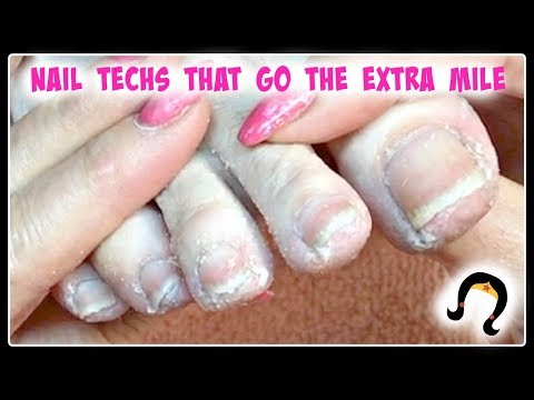 👣 XXX Extreme Dead Dry Skin Removal from Toes and Toenails During Pedicure Tutorial