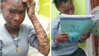 الفتاة الثعبان تغير جلدها كل ست اسابيع ولهذا طردوها من المدرسة | صور صادمة