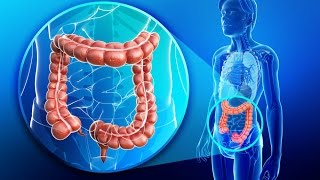 Colon Health and The Dangers of Colonoscopies