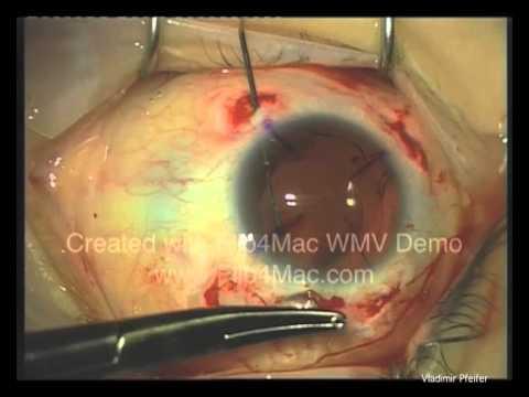 Artificial Iris Aniridia