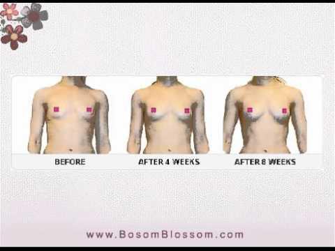 Breast Enhancement Cream - Breast Firming Cream - Breast Enhancement - Bosom Blossom
